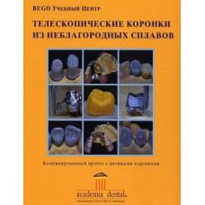 Книга - Телескопические коронки из неблагородных сплавов